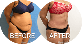 before after photos tummy tuck