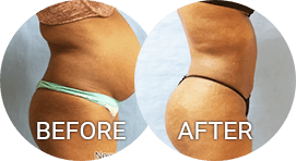 before after photos liposuction