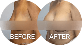 before after photos breast augmentation