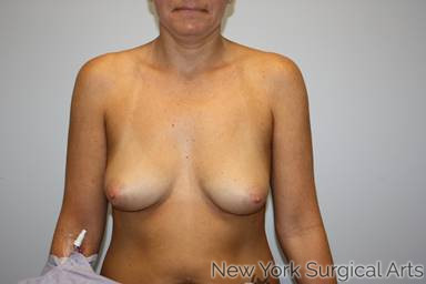 Breast Augmentation Before & After Patient #1174
