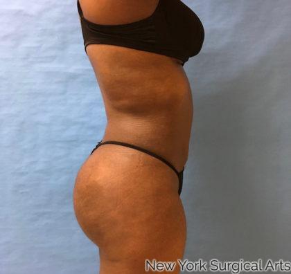 Brazilian Butt Lift Before & After Patient #1034