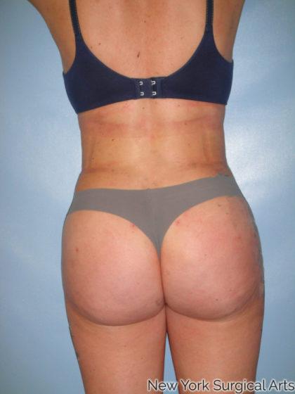 Brazilian Butt Lift Before & After Patient #1098
