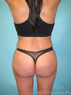 Brazilian Butt Lift Before & After Patient #1128
