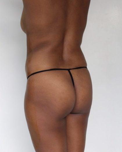 Brazilian Butt Lift Before & After Patient #1153