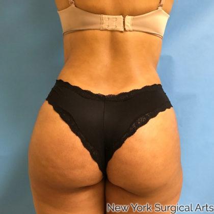 Brazilian Butt Lift Before & After Patient #1048