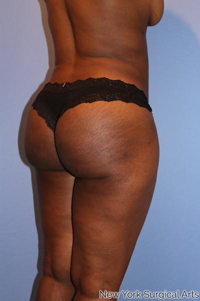 Brazilian Butt Lift Before & After Patient #1055