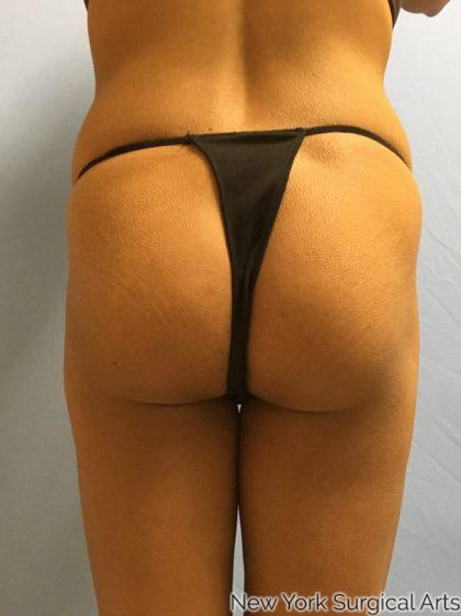 Brazilian Butt Lift Before & After Patient #1066