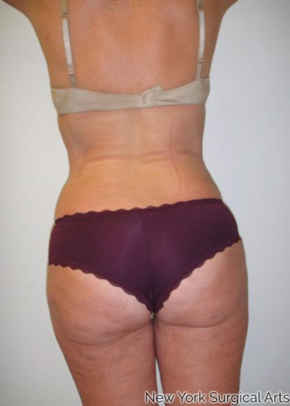 Brazilian Butt Lift Before & After Patient #1073