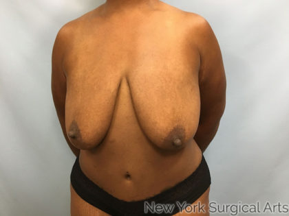 Breast Lift Before & After Patient #1182
