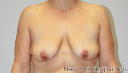 Breast Lift Before & After Patient #1189