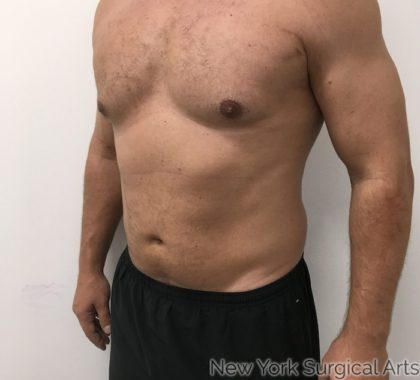Gynecomastia Before & After Patient #1194