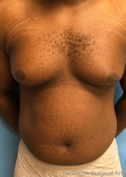 Gynecomastia Before & After Patient #1197