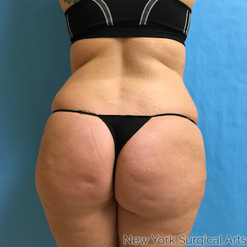 Liposuction Before & After Patient #948