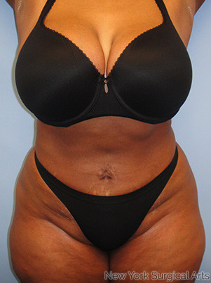Liposuction Before & After Patient #996