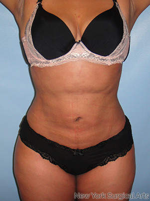 Liposuction Before & After Patient #1003
