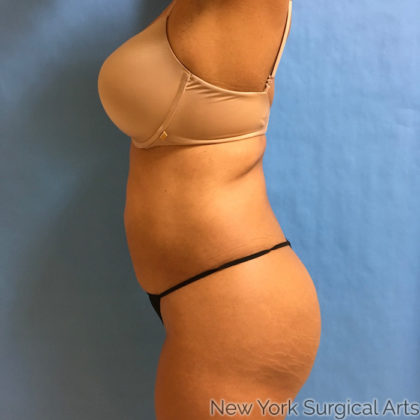 Liposuction Before & After Patient #954