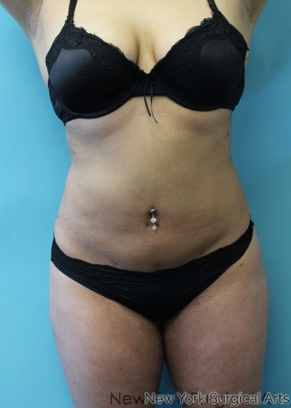 Liposuction Before & After Patient #957