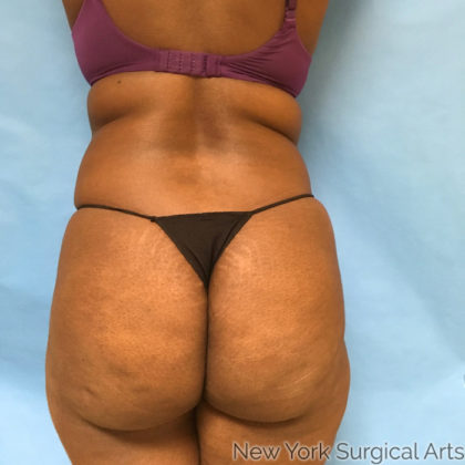 Liposuction Before & After Patient #960