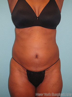 Liposuction Before & After Patient #963