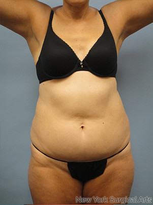 Liposuction Before & After Patient #977