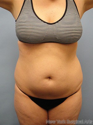 Liposuction Before & After Patient #984