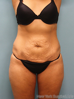 Tummy Tuck Before & After Patient #898