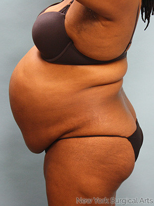 Tummy Tuck Before & After Patient #904