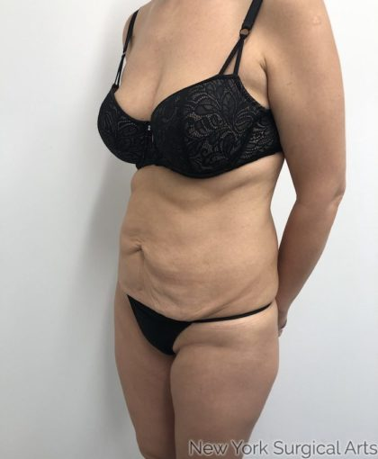 Tummy Tuck Before & After Patient #927