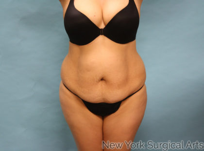 Tummy Tuck Before & After Patient #937