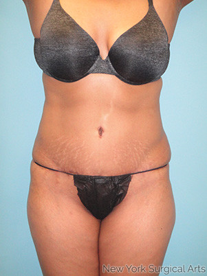 Tummy Tuck Before & After Patient #943
