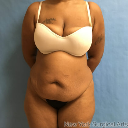 Tummy Tuck Before & After Patient #860