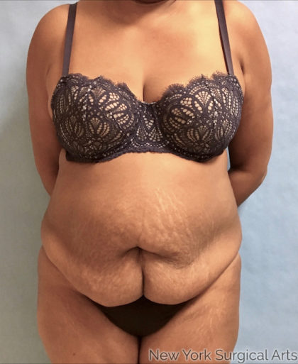 Tummy Tuck Before & After Patient #866
