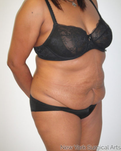 Tummy Tuck Before & After Patient #869