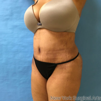 Tummy Tuck Before & After Patient #879
